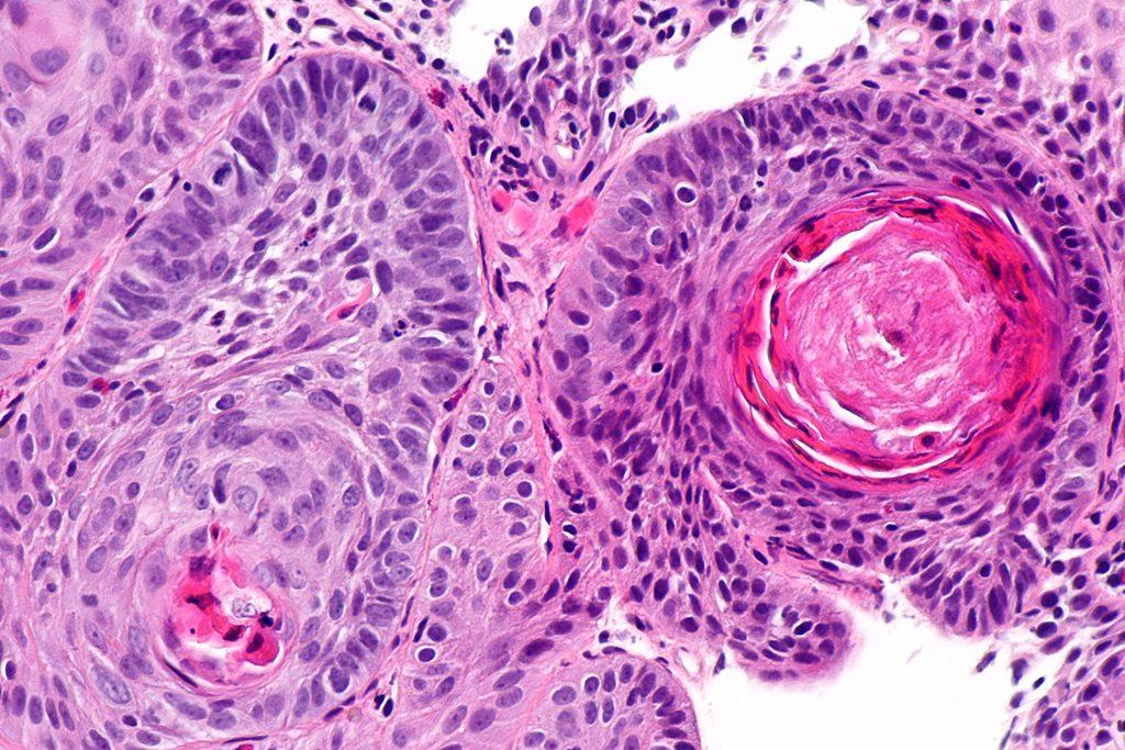 Carcinome oesophage